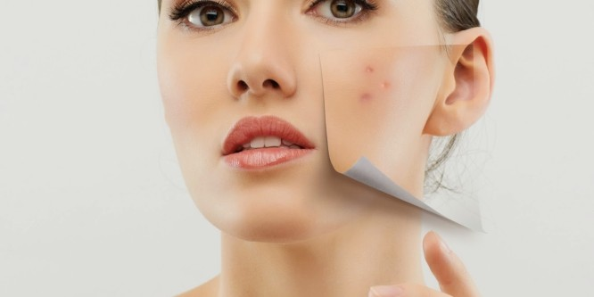 huidproblemen